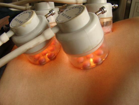 表皮移植療法